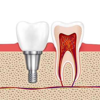 Root Canal Treatment in Roswell GA