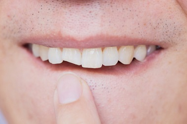 Cracked Tooth Syndrome : How to detect it