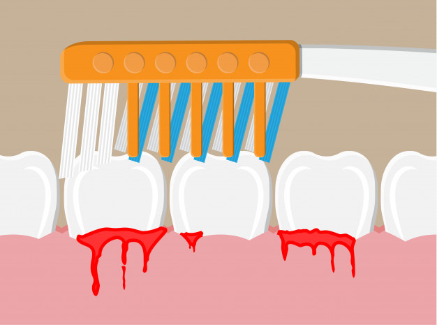 How to prevent bleeding gums