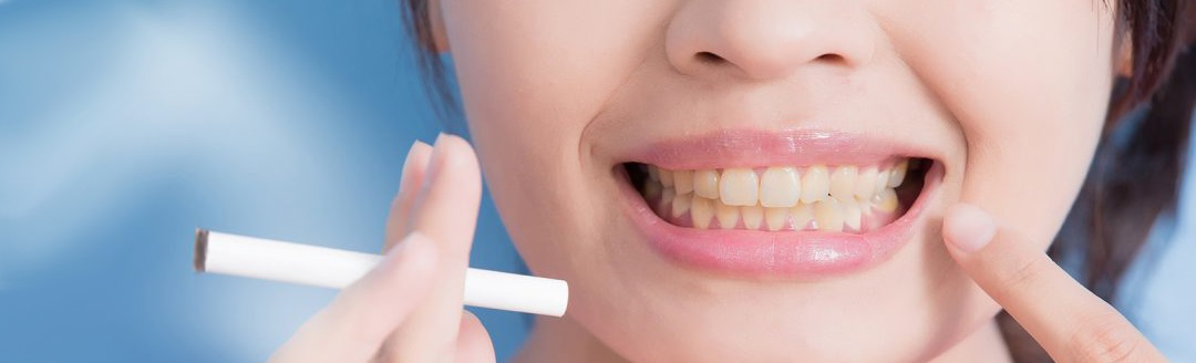 5 Harmful Ways Smoking Can Affect Your Mouth! 2