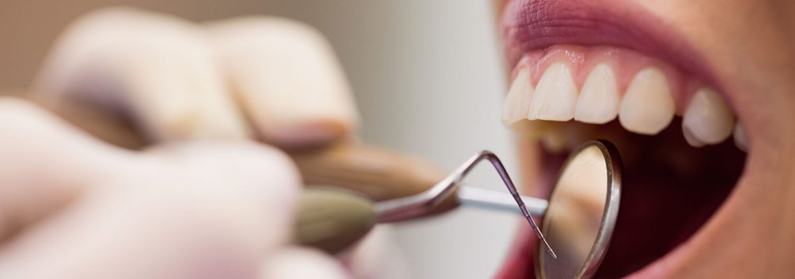 Tooth scaling : Do you need it?