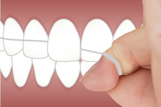 Benefits of Flossing 3