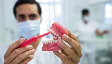 clenching-teeth-379